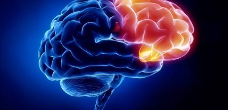 گردهمایی متخصصان مغز و اعصاب در نهمین کنگره سکته مغزی