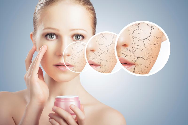 پوست خشک را با این ماسکها درمان کنید