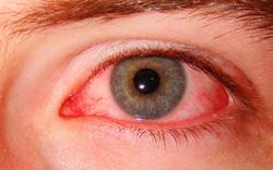 ۸ علت قرمزی چشم و راهکارهای درمانی+ اینفوگرافیک