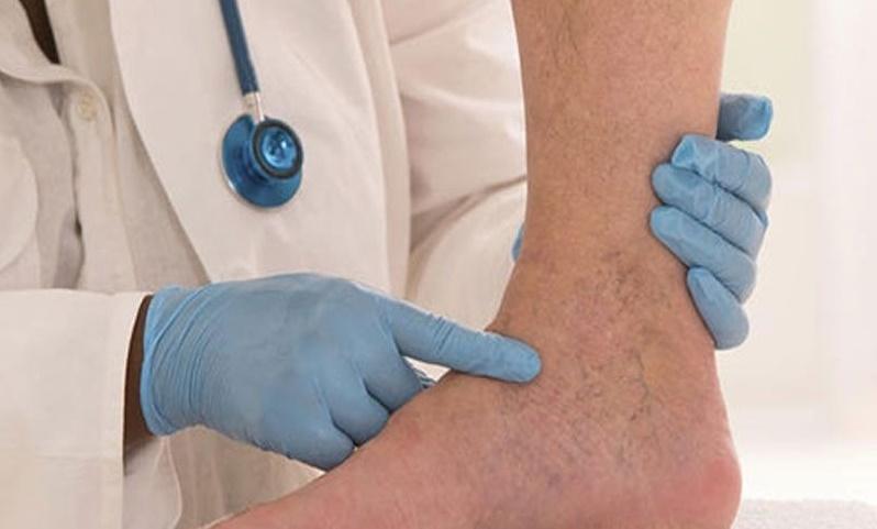 رایج ترین راه های درمان واریس پا را بشناسید