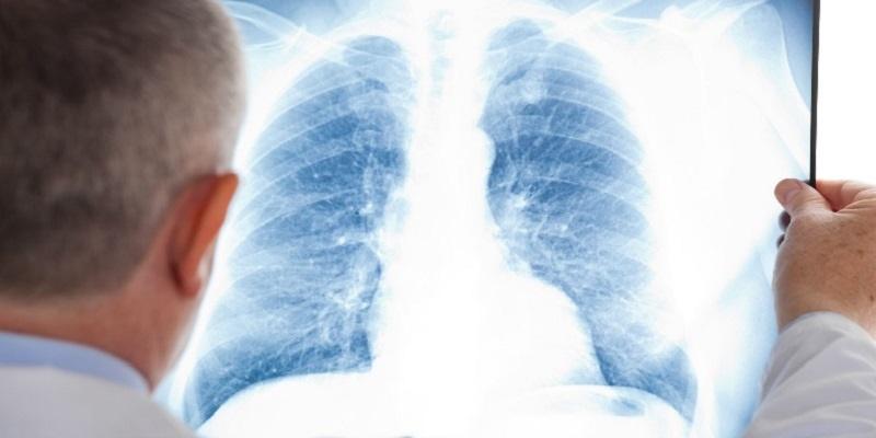 توصیه هایی که ریه هایتان را از هر بیماری وا ینه می کند