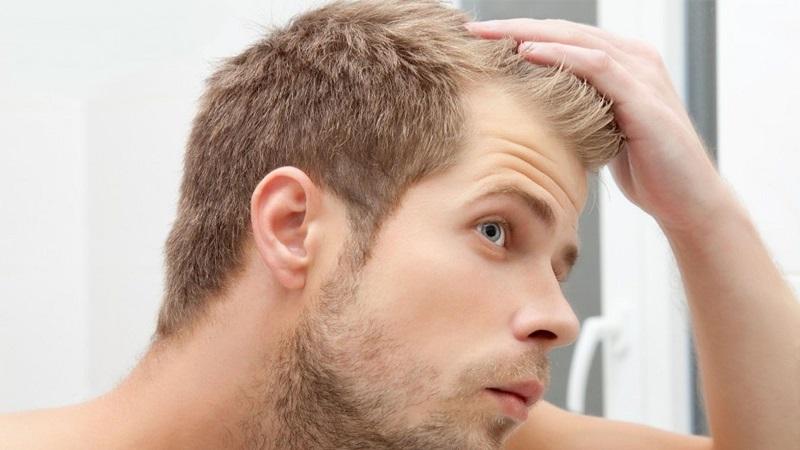 نکات مهم در رابطه با ریزش مو و روش های درمان