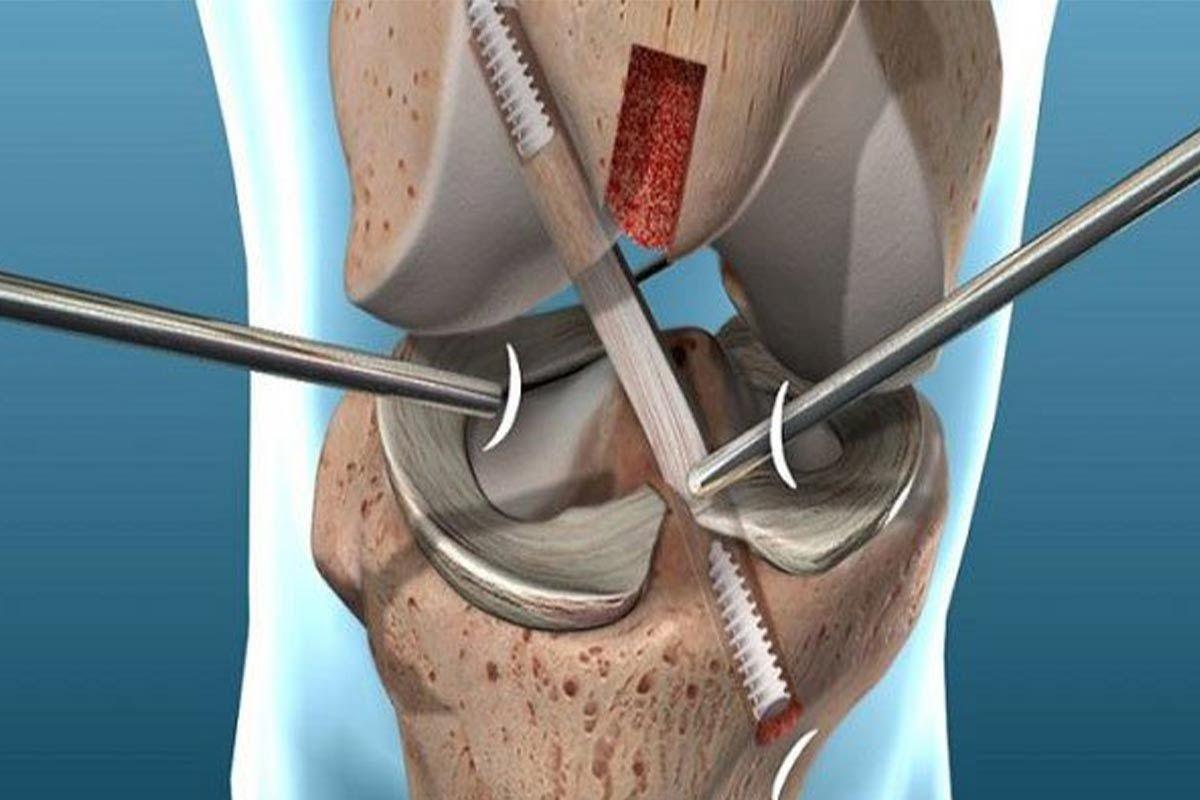 آیا درمان آسیب رباط صلیبی قدامی ACL نیاز به جراحی دارد؟